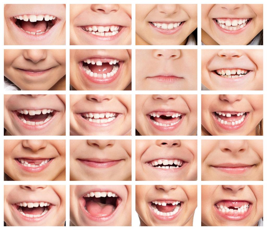 orthodontiste Douvres-la-Délivrande